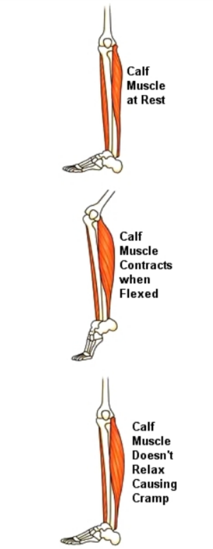 How exercise affects the calf muscle
