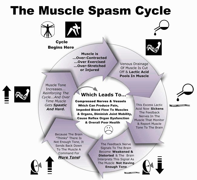 The muscle spasm cycle and how to break out of it, and prevent it