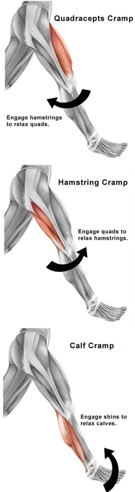 Types of leg cramps and which muscles are affected - see more details about the causes here