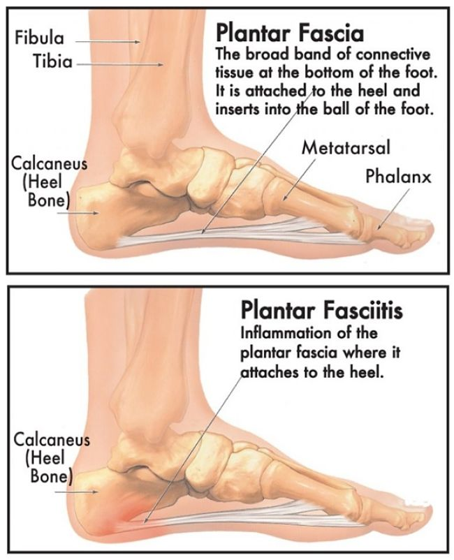 Lack or arch support and foot strike position can lead to many painful stress injuries