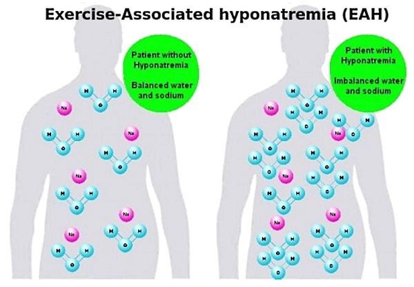 Drinking too much water can dilute the Sodium levels in the blood and tissues leading to life threatening swelling of the brain (Exercise-Associated hyponatremia (EAH)